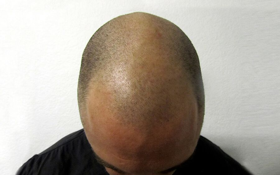 Före scalp micropigmentation