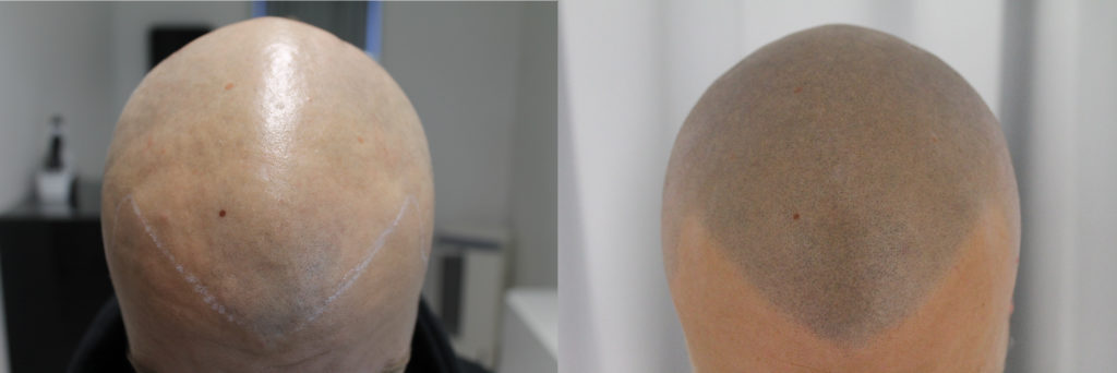 scalp micropigmentation hair line