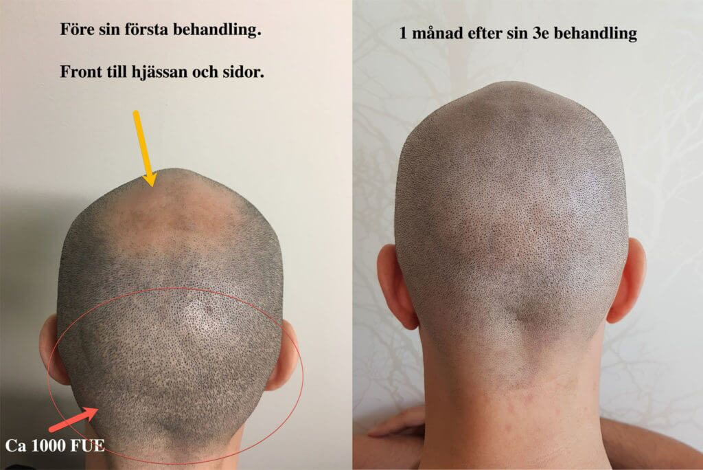 scalp-micropigmentation-Fue-ärr-scalp-micropigmentation
